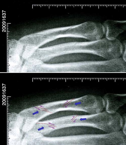 Radiographie de quatre fractures (dont une multiple) impliquant deux métacarpes