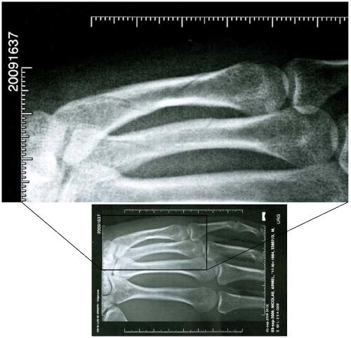 Position de la radiographie de la figure 1 par rapport aux os de la main