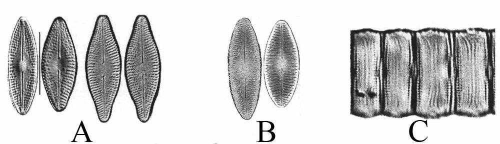 Microphotographies de Diadesmis confervacea
